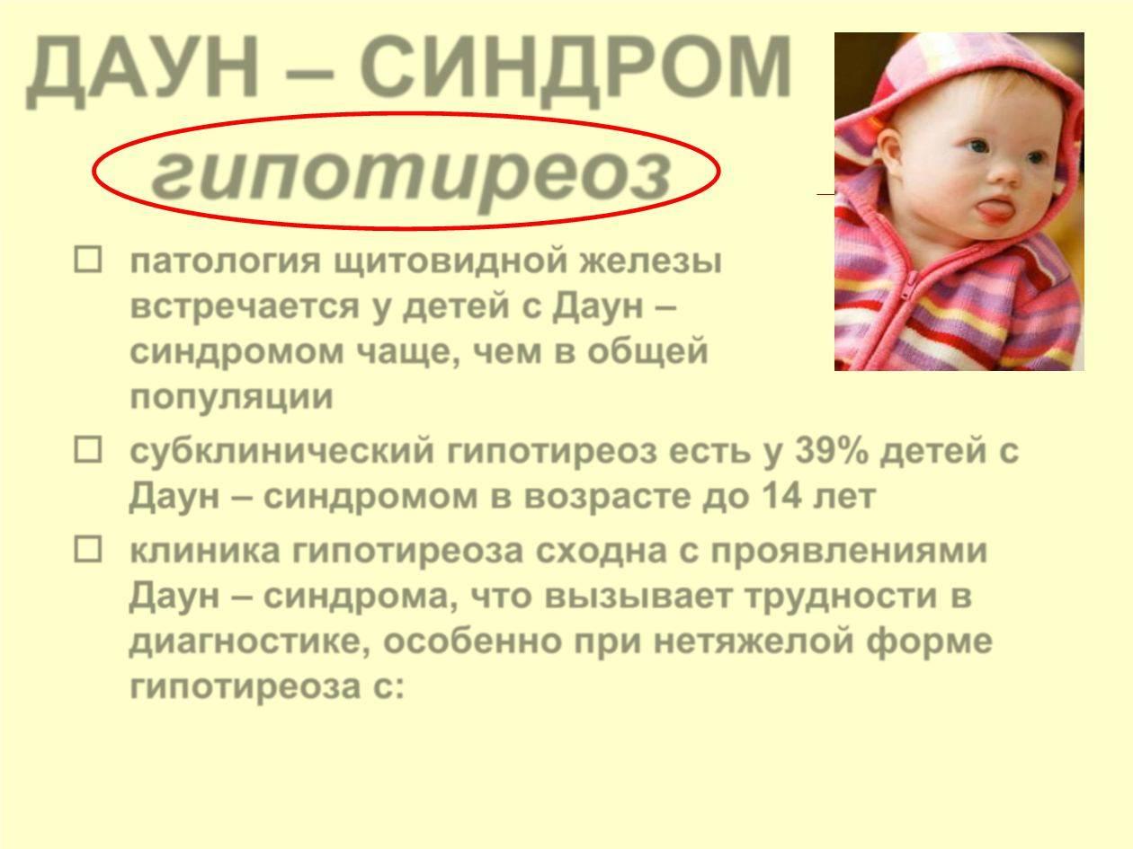 Синдром дауна или как обезопасить своего ребенка | медиков.нет синдром дауна или как обезопасить своего ребенка | медиков.нет