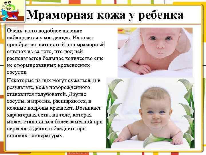 Мраморная кожа у ребенка младше года — причины и последствия