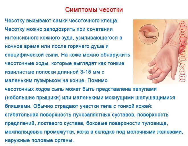 Как распознать чесотку у ребенка: первые признаки и последующие симптомы, лечение и профилактика болезни - про папилломы