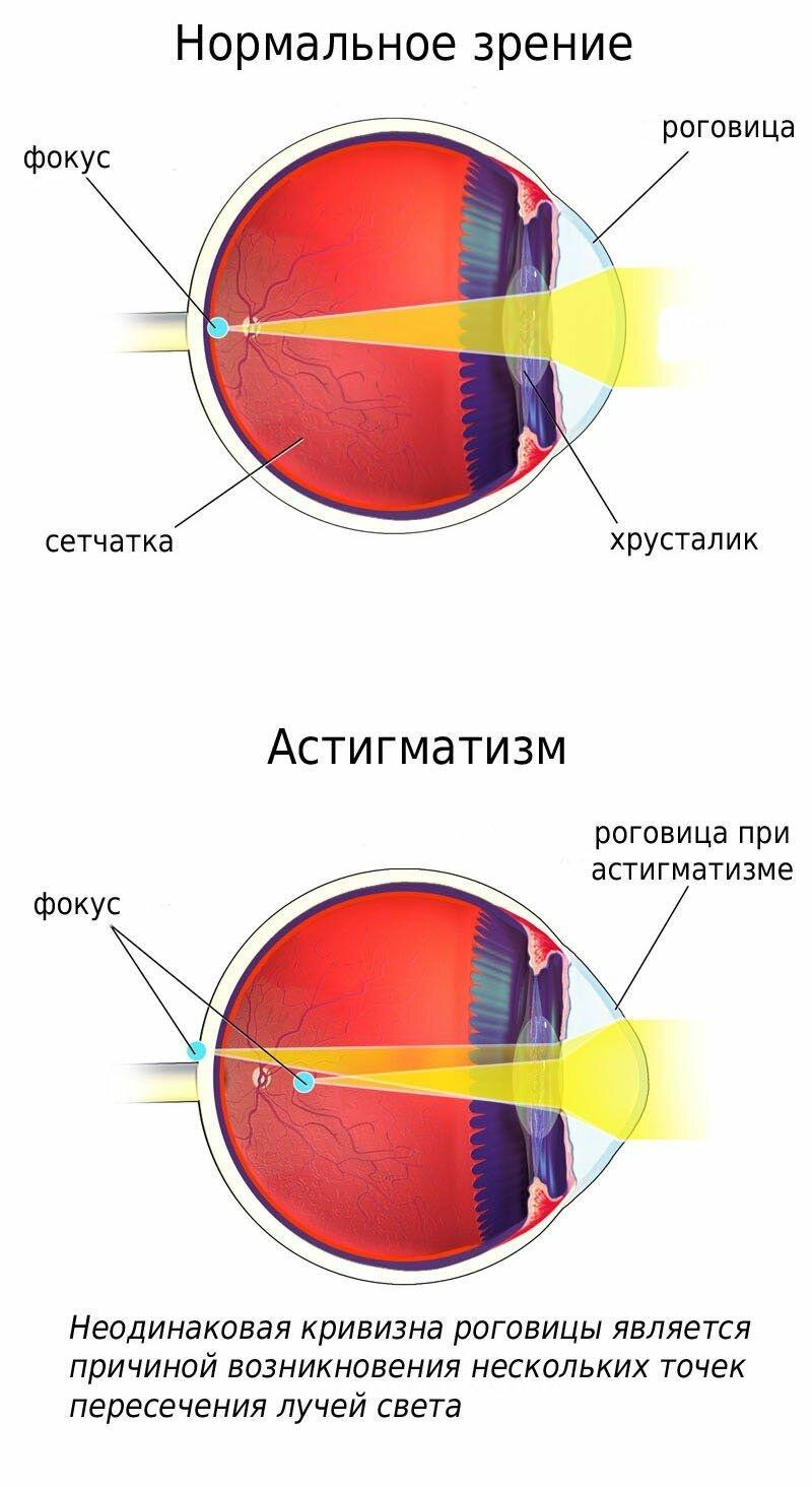 Что такое гиперметропия слабой степени обоих глаз и к чему она может привести?