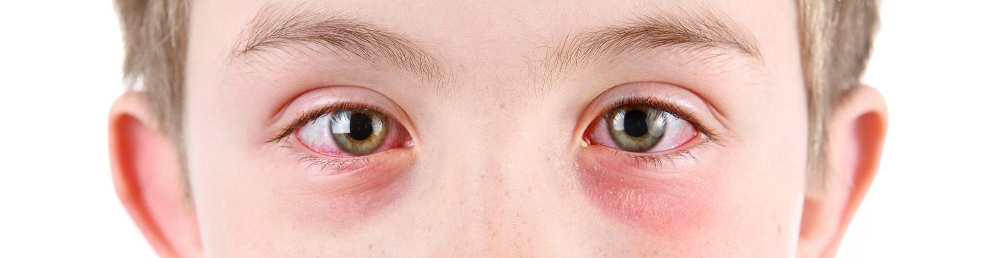 Аллергический конъюнктивит у детей: лечение, симптомы и причины