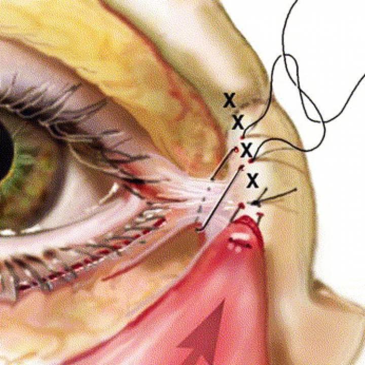 Что такое склеропластика глаз? операция по снайдеру-томпсону, по пивоварову, диcтpaкциoннaя cклepoплacтикa
