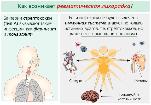 Симптомы и лечение ревматизма у детей, профилактика осложнений заболевания