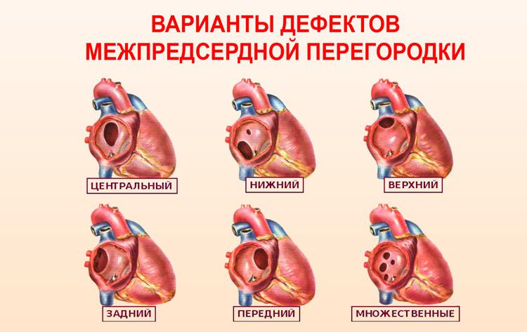 Врожденный порок сердца у новорожденных последствия