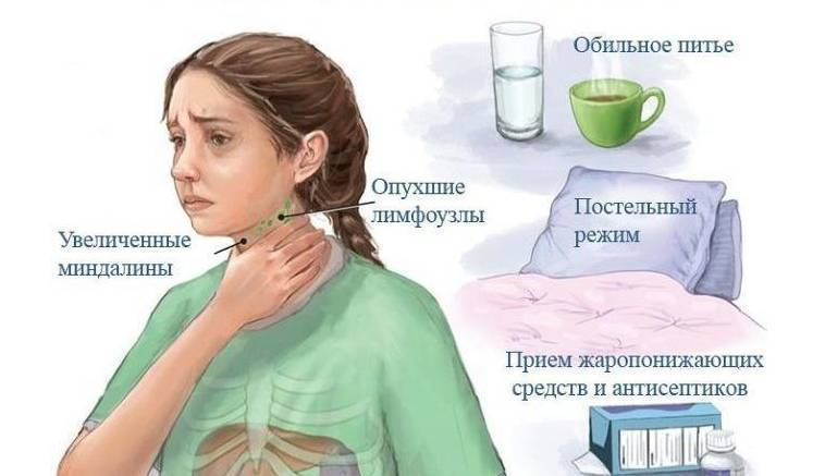 Инфекционный мононуклеоз у детей — что это за болезнь, симптомы и лечение