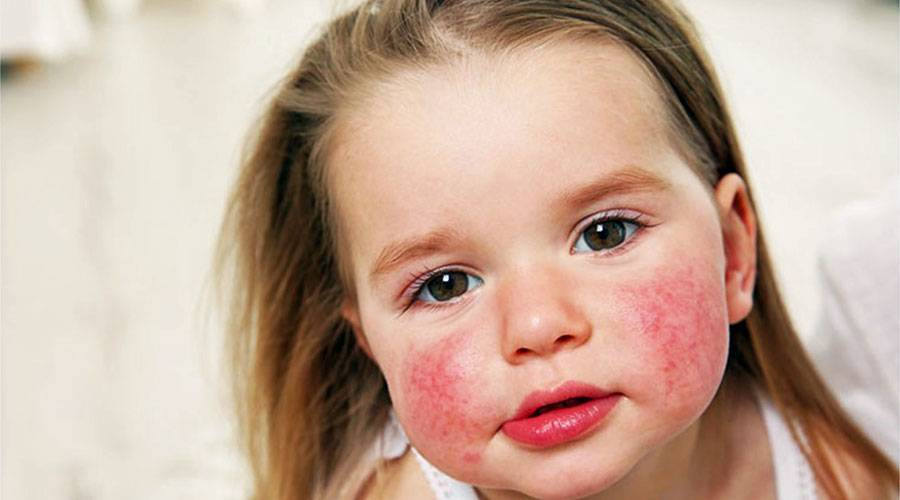 Признаки аллергии на животных у детей