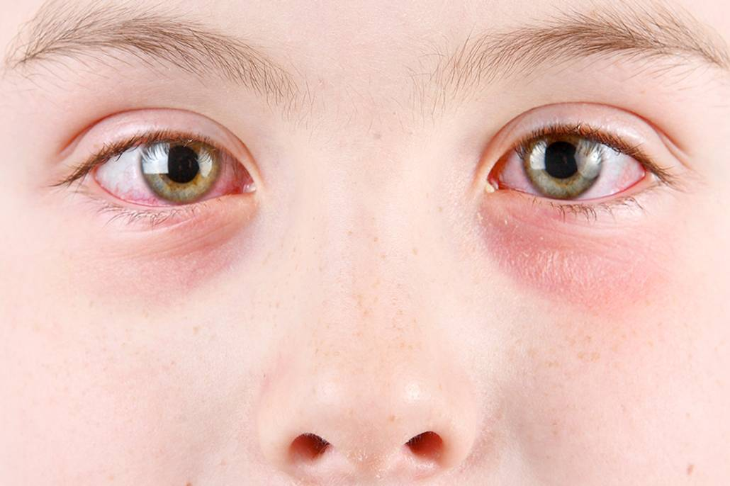Как снять воспаление глаз в домашних условиях - народные средства