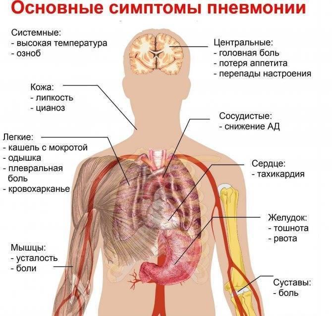 Как лечить пневмонию в домашних условиях?