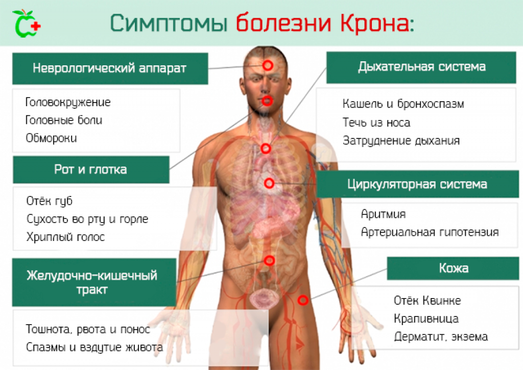 Болезнь крона у детей. симптомы. диагностика. лечение. симптомы болезни крона у детей и методы лечения воспаления пищеварительного тракта болезнь крона детей 5 лет