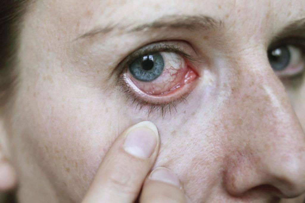 5 причин, по которым у ребенка красные глаза и гноятся