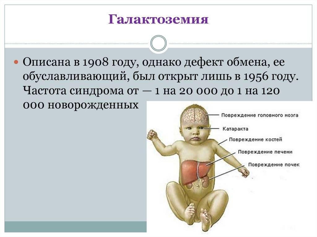Галактоземия: симптомы у новорожденных с фото, норма фермента в крови у детей | заболевания | vpolozhenii.com
