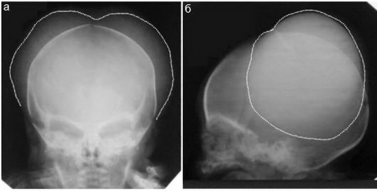Черепно-мозговая травма у детей. повреждения черепа