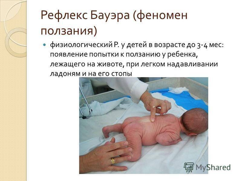 Рефлекс моро у новорожденных: что это такое, когда пройдет