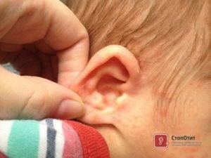 Запах из уха у ребенка причины м лечение