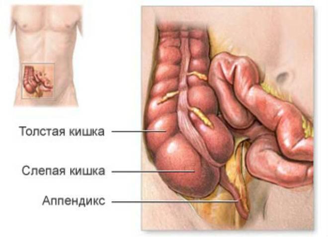 Как определить аппендицит у ребенка: первичные проявления