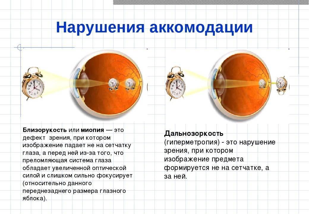 Что такое гиперметропия слабой степени и как её лечить oculistic.ru что такое гиперметропия слабой степени и как её лечить