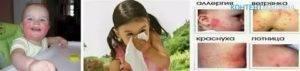 Аллергия на витамин Д у грудничков: фото, симптомы, может ли быть негативная реакция у детей?
