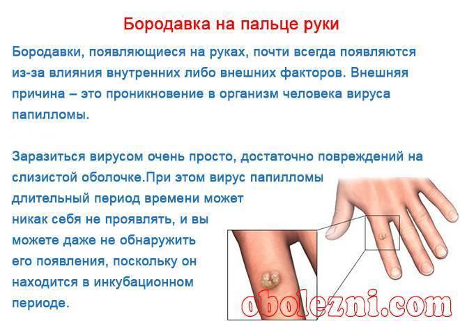 Чем и как вывести бородавки на руках и пальцах рук у детей? фото и лечение наростов у ребенка