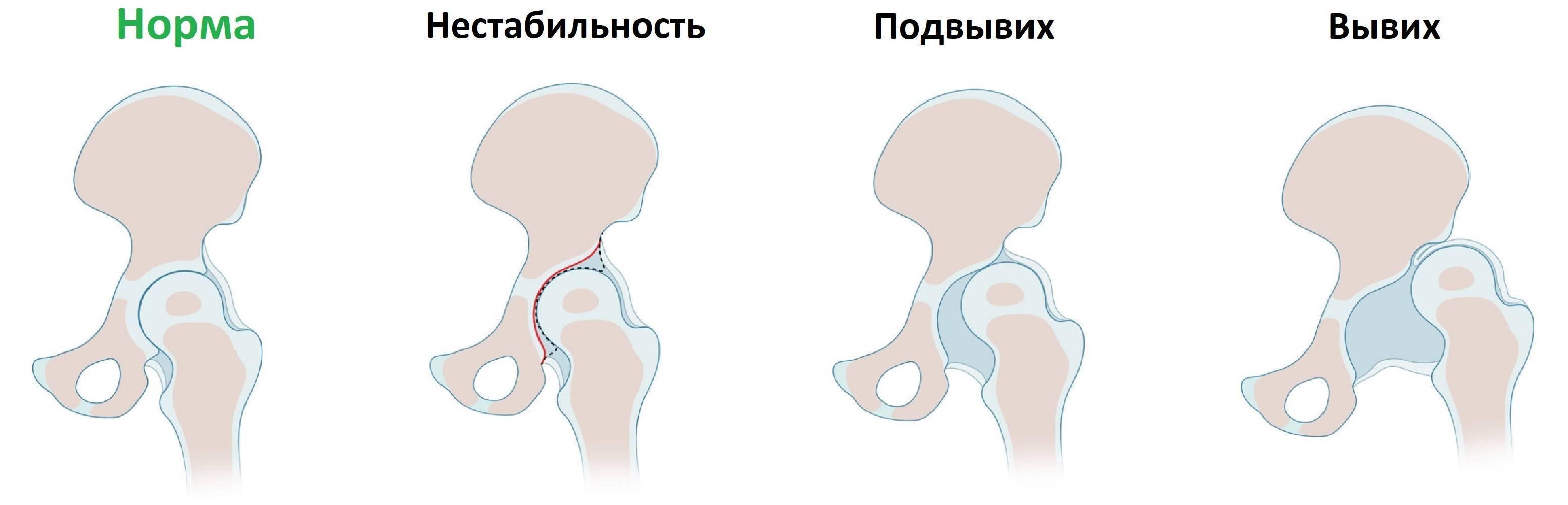 Что такое дисплазия ног у детей