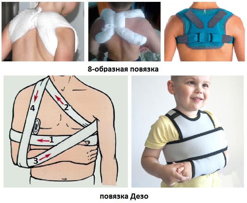 Перелом ключицы у ребенка со смещением и без: лечение, период восстановления, последствия