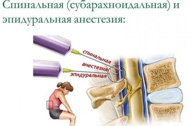Какой наркоз лучше и эффективнее спинальный или общий