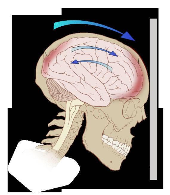 Последствия ушиба мягких тканей головы у грудничка. черепно-мозговая травма у детей