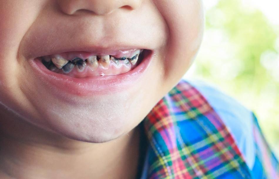 Альтернатива серебрению молочных зубов