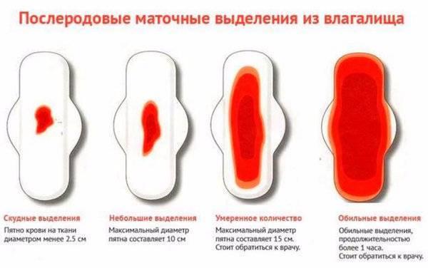 Скудные месячные - причины: почему очень плохо и слабо идет менструация, а выделения без крови?