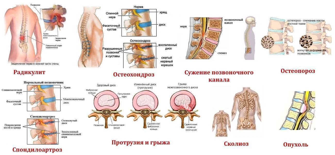 Остеохондроз при беременности причины симптомы и лечение