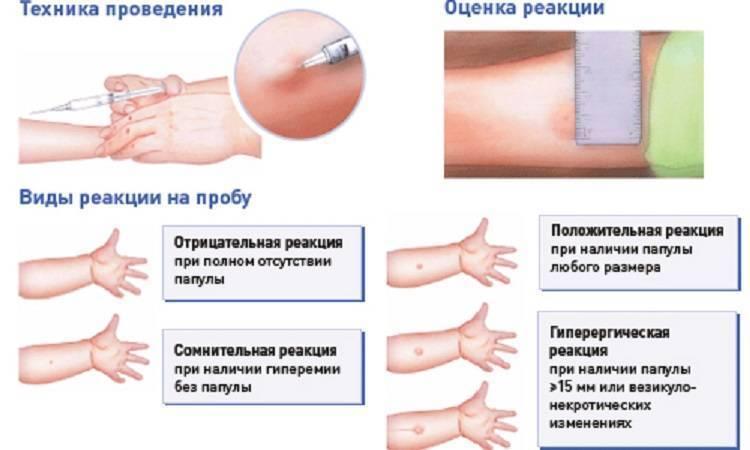 Прививка бцж: реакция, последствия, осложнения