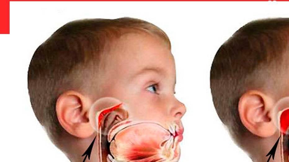 Обострение аденоидита у детей и его лечение, как предотвратить обострение аденоидов у детей?