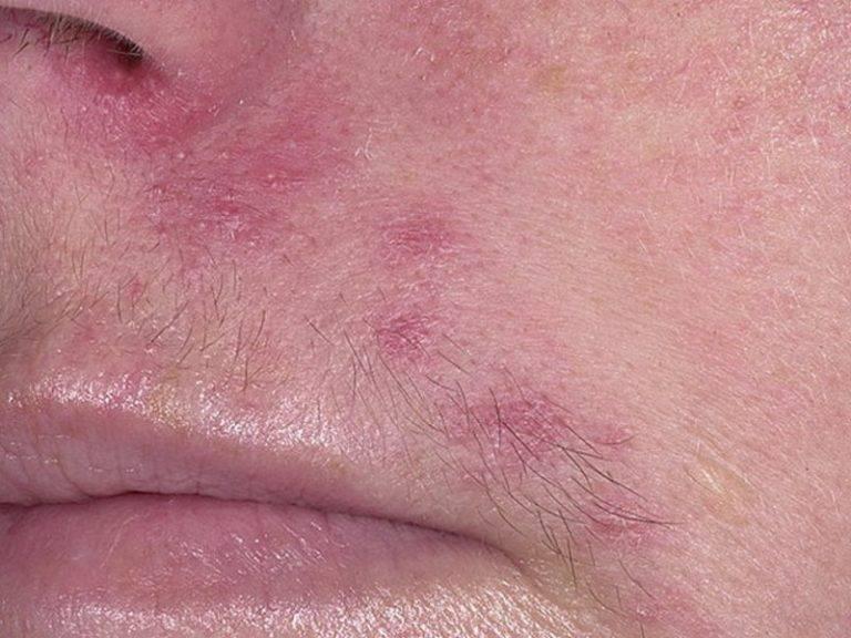 Пероральный дерматит на лице - лечение фото у детей и взрослых. причины и лечение перорального дерматита мазями