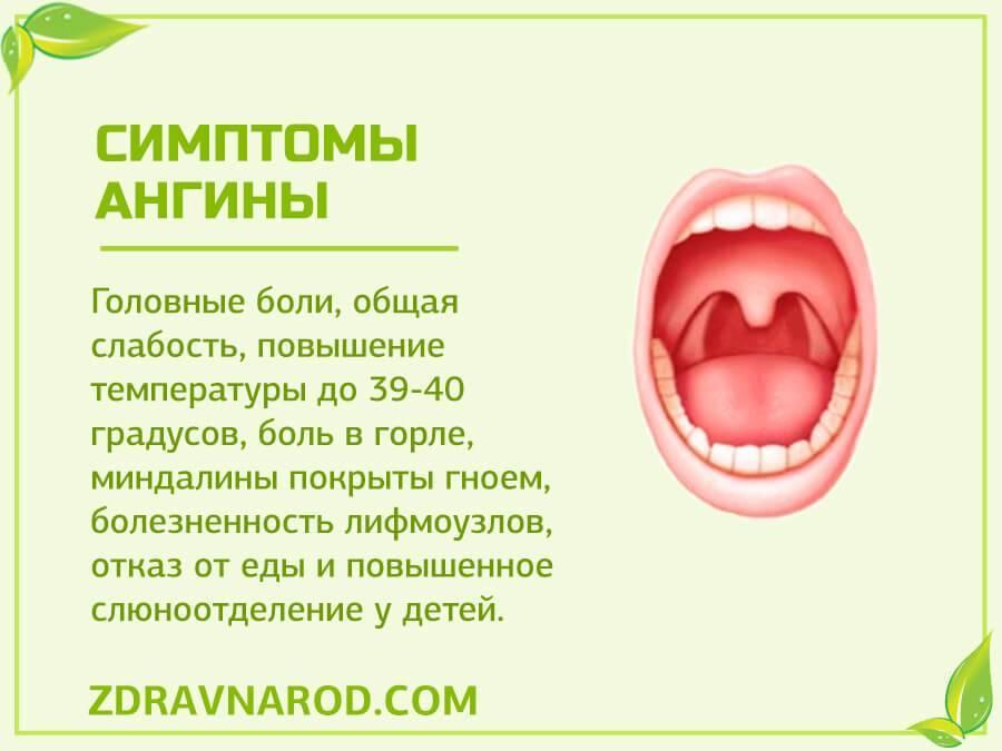 Катаральная ангина: симптомы, лечение, фото горла и возможные осложнения