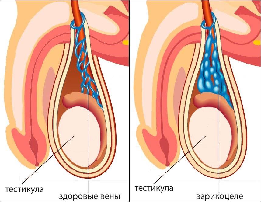 Перекрут яичка: симптомы, лечение, операция