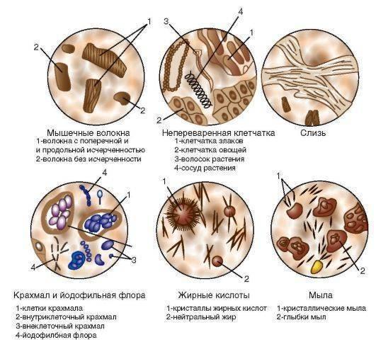 Йодофильная флора патологическая немного. йодофильная флора патологическая в копрограмме | здоровье человека