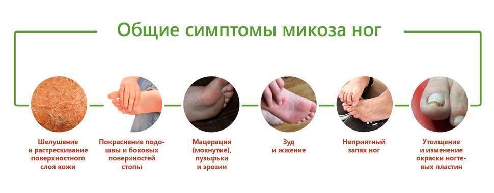Профилактика грибка стопы и ногтей: популярные действующие профилактические средства