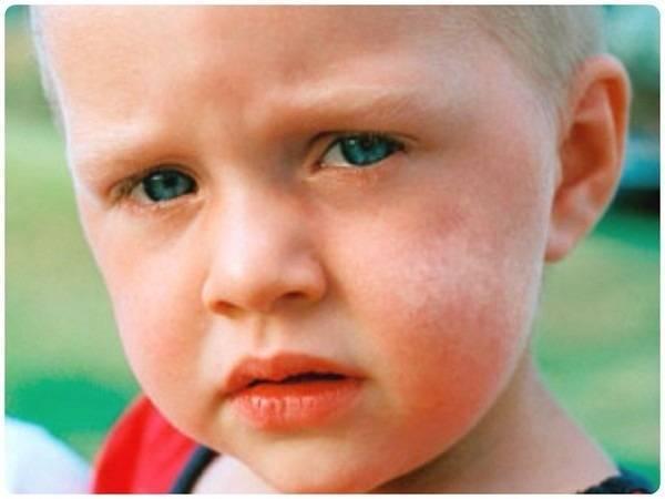 Пятна на теле (красные, коричневые, белые, розовые) – виды пятен на коже, причины, лечение