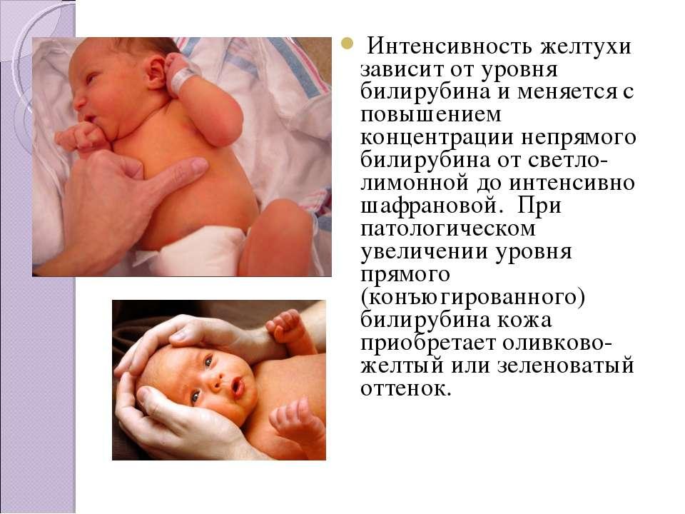 Подробно о причинах и последствиях желтухи новорожденных