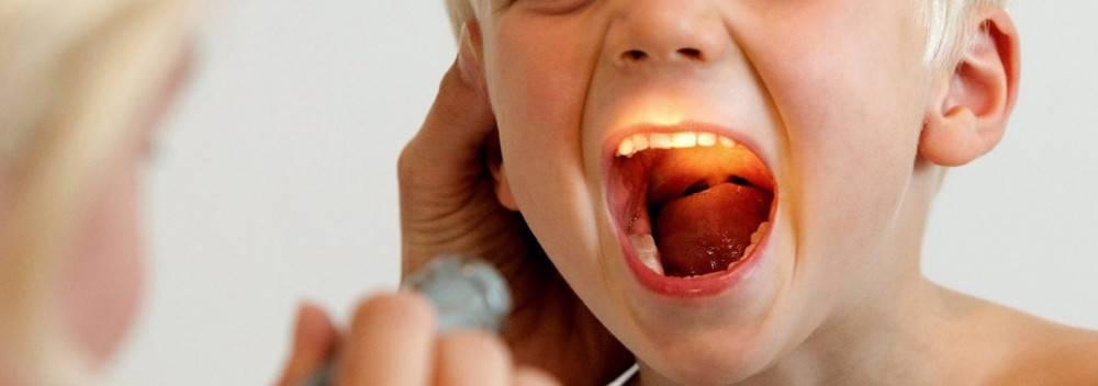 Вирусная ангина у детей: причины, симптомы, диагностика и лечение