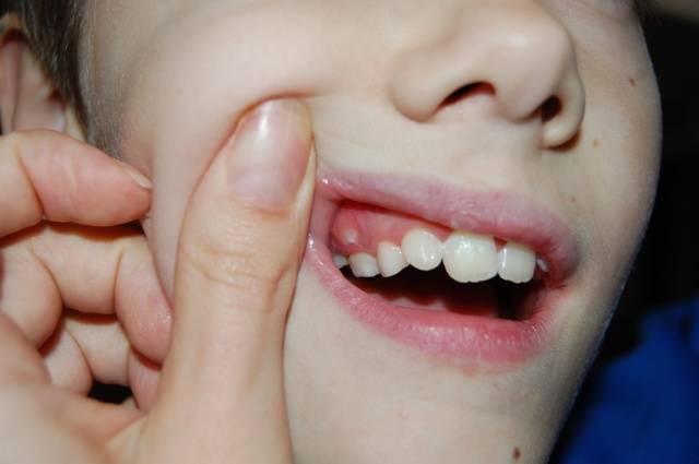 Гнойник во рту на десне у ребенка - что делать и как лечить: фото и лечение