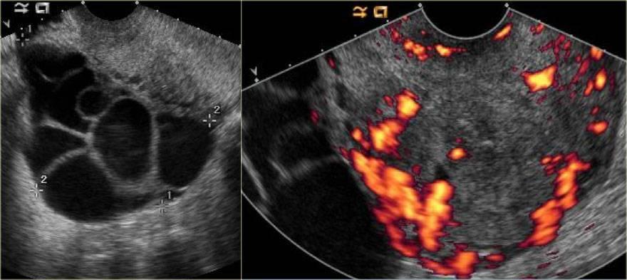 Беременность после лапароскопии кисты яичника: течение и особенности