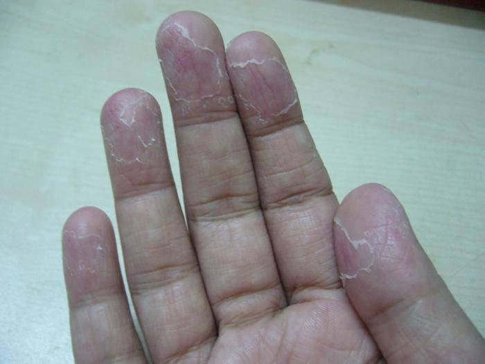 У ребенка шелушится кожа на руках и ногах, что делать
