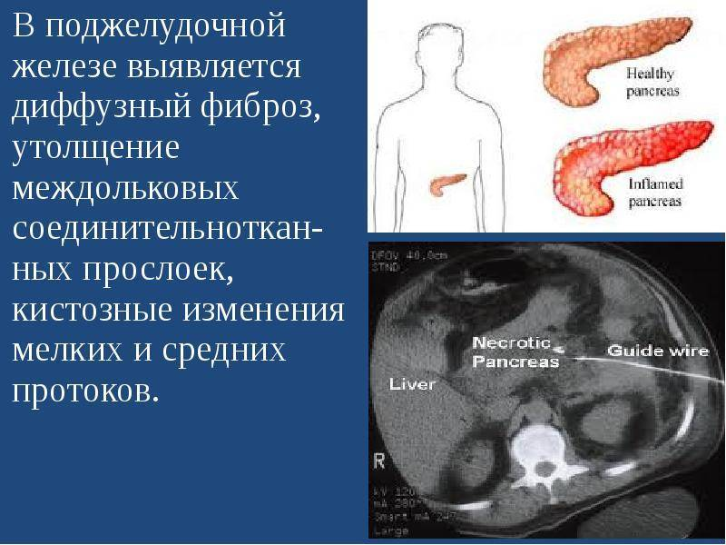 Реактивный панкреатит у детей: симптомы и лечение, диагностика