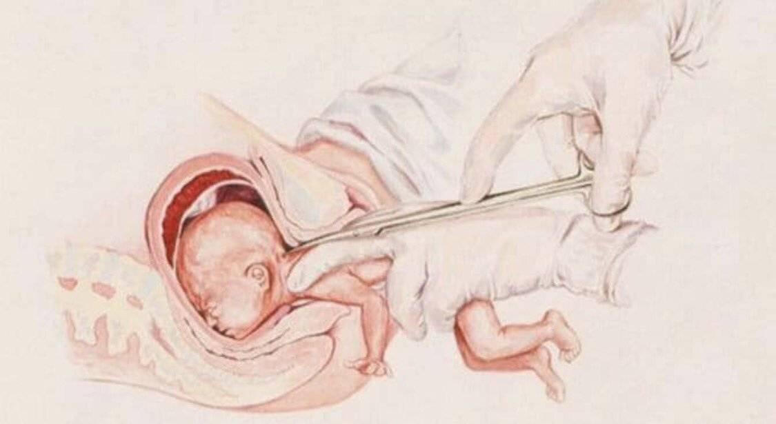 Роды на 35 неделе беременности