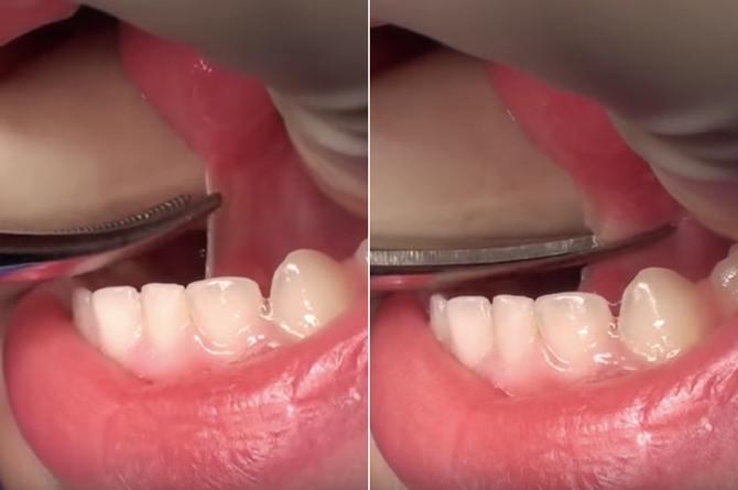 В каком возрасте детям подрезают уздечку под языком и зачем делать пластику взрослым: фото и процедура операции. зачем подрезают уздечку
