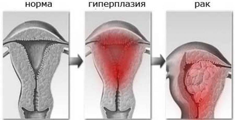 Можно ли забеременеть при атипичной гиперплазии. виды гиперплазии и беременность