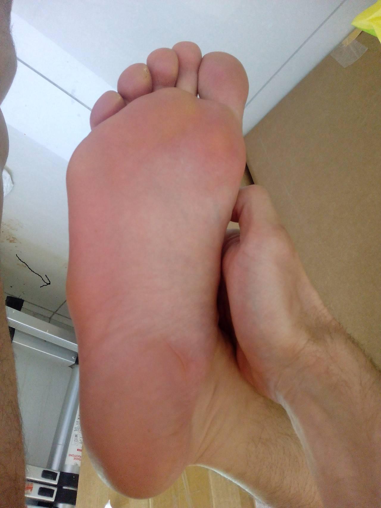 Гигрома стопы: что это, причины, симптомы, лечение, фото