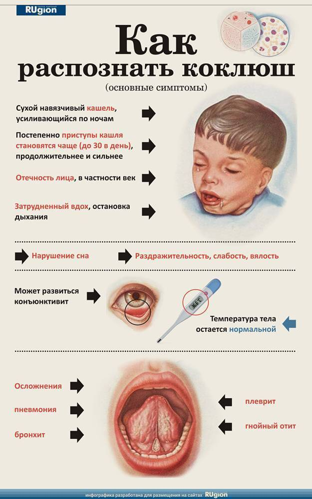 Паракоклюш у детей - симптомы и лечение, анализы, клинические рекомендации