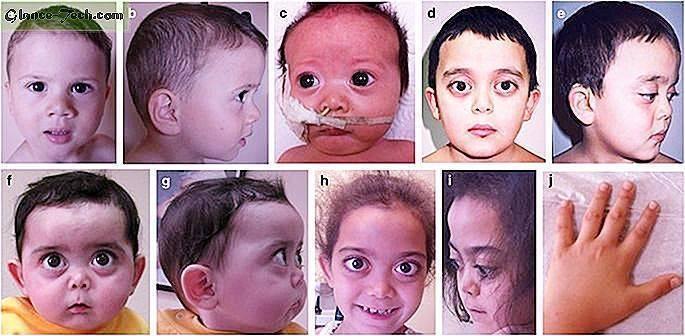 Гипоксически ишемическое поражение головного мозга у детей. патологии цнс у новорожденных - врач-информ