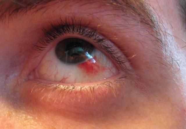 Лопнул сосуд в глазу: что делать при разрыве капилляра, лечение в домашних условиях, как убрать красноту быстро